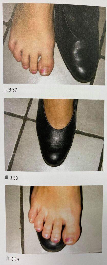 Üks hea näide pildi näol, et jalanõud ei ole jalale sobilikud. Pilt võetud Küüneteraapa käsiraamatust.